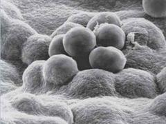 Meningokokken-Bakterien verursachen lebensgefährliche Krankheiten.