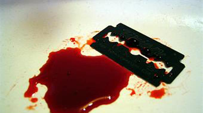 Laut UNICEF verstösst Genitalverstümmelung gegen fundamentale Menschenrechte. (Archivbild)